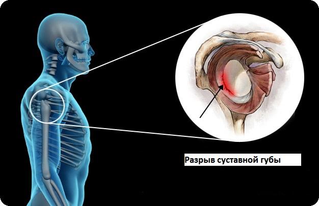 Артроскопический Ремонт Bankart и разрыв суставной губы плеча ( SLAP)
