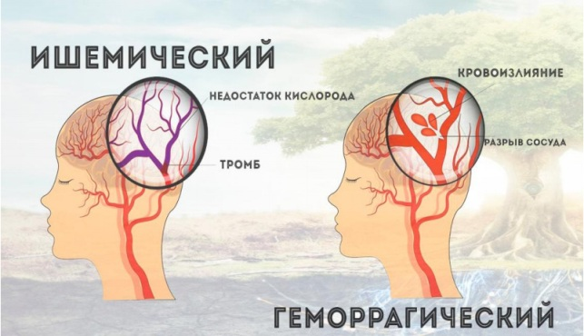 Инсульт головного мозга : Виды
