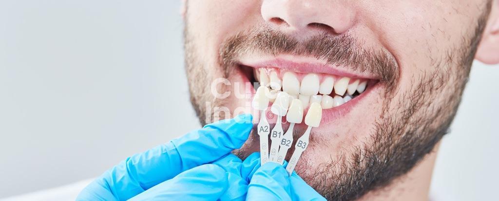 Винир ( зубы виниры ) стоматология