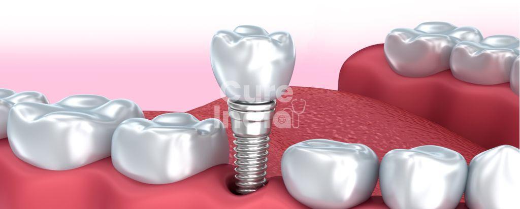 Все на 6 имплантация зубов в индии