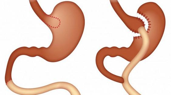 билиопанкреатическое шунтирование в Индии