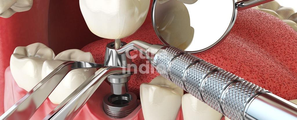 Немедленная загрузка Имплантация зубов в индии
