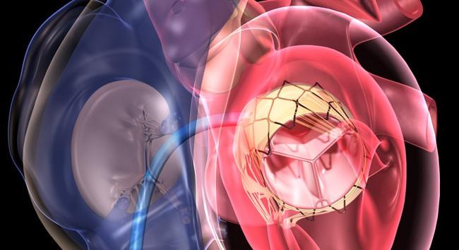 Транскатетерная замена аортального клапана TAVR в Индии