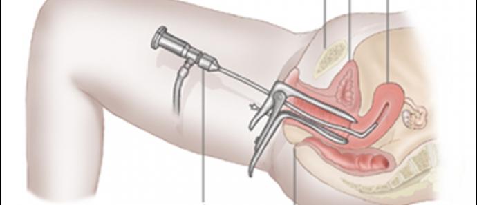 Гистероскопическая Полипэктомия,удаление полипа матки в Индии лучшим хирургом