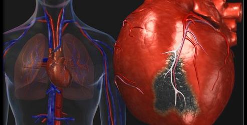 Операция шунтирование сердца в Индии лучшим кардиохир