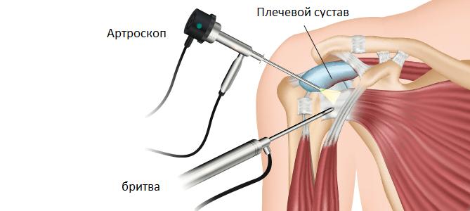 Артроскопия плечевого сустава в Индии лучшим хирургом
