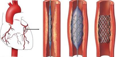 Коронарная ангиопластика сделана с высокой частотой успеха в Индии