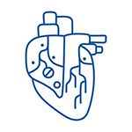 Artificial Heart or LVAD